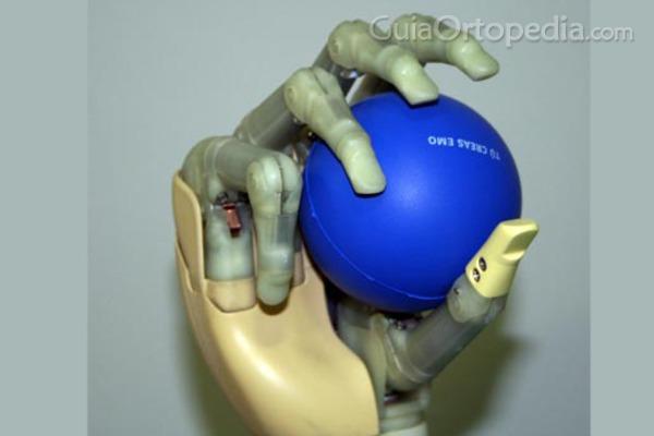 Impresión en 3D: un gran avance para el sector de la ortopedia
